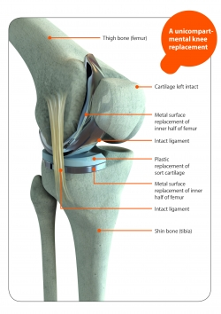 Arthritis Queensland  Knee Replacement Surgery Are There