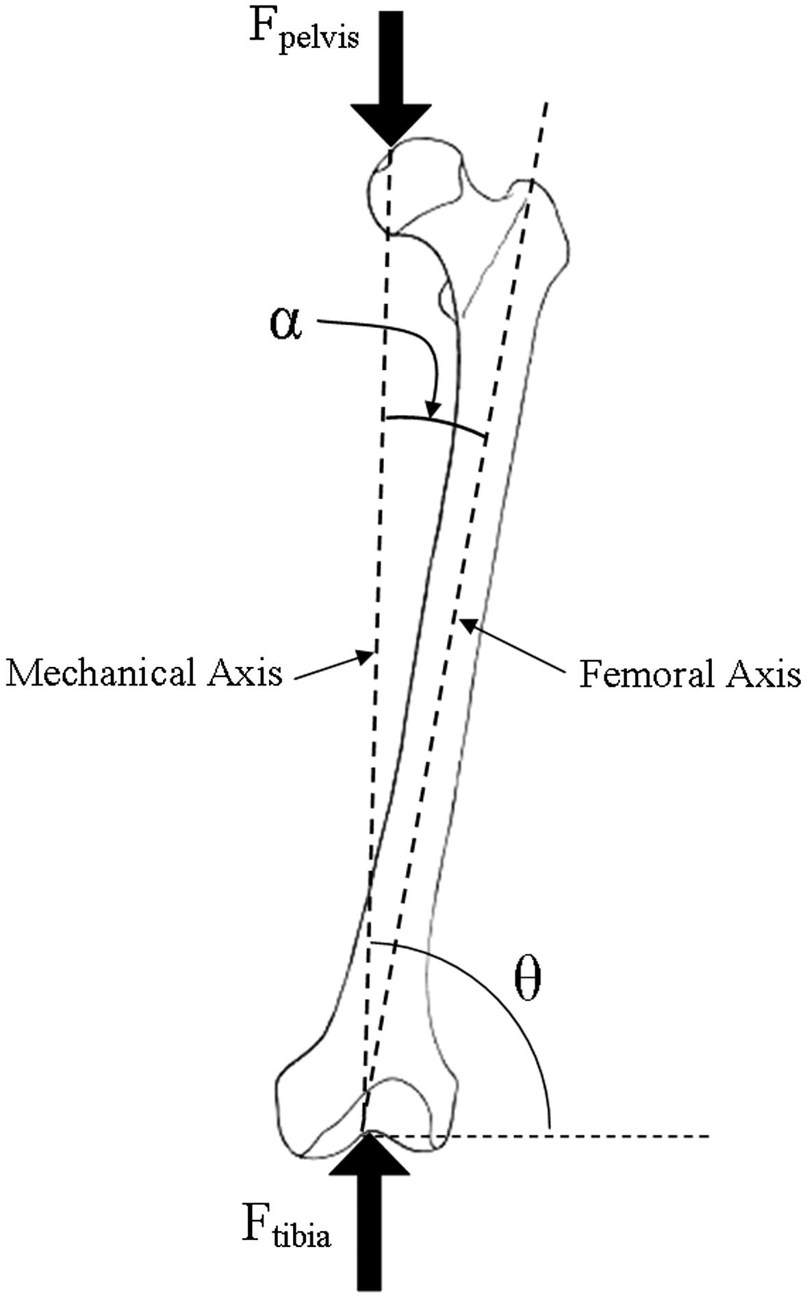 The Effect Of Modular Tapered Fluted Stems On Proximal
