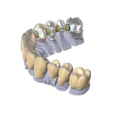 Dental CAD Exocad