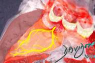 heart-left-ventricle-ventricular-septum-left-bundle-branch-nerves-aortic-valve-sinus-of-Valsalva-art-anatomy-Davidoff