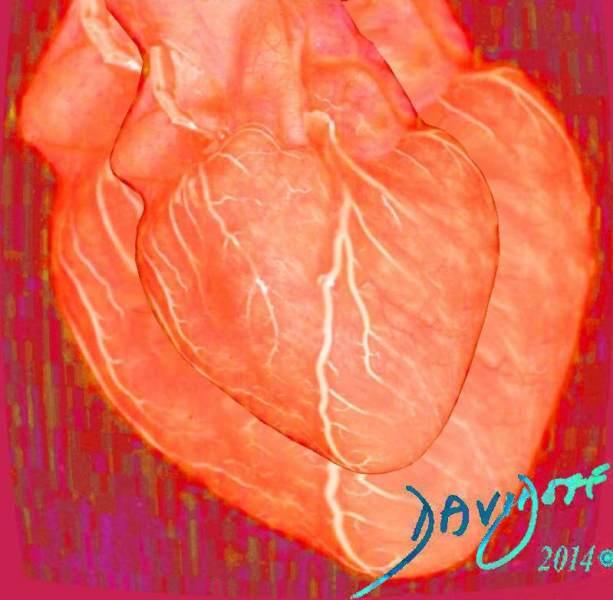 coronary-arteries-heart-art-anatomy-Davidoff