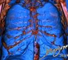 CT-lungs-chest-ribs-sternum-art-anatomy-Davidoff