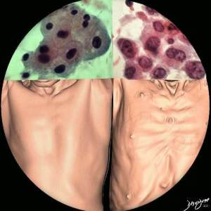cancer, carcinoma, hepatocellular carcinoma, liver cancer, body, health, disease, cachexia, wasting, cells, normal, carcinoma, nuclear-cytoplasmic ratio, cytology, cytopathology, size, pathology, CT scan radiology, 3D, art, the common vein, art in anatomy, Ashley Davidoff MD