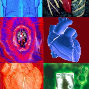 heart, lungs, circulation, X-ray, diagnosis, stethoscope, collage