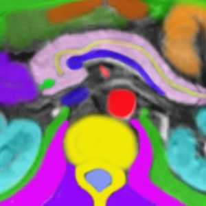 genitourinary tract, genitourinary system, kidneys, renal, kidney, anatomy, CT scan, radiology, Art in Anatomy, Ashley Davidoff MD, pancreas, pancreatic duct, splenic vein, CT scan, radiology, aorta, bile duct,