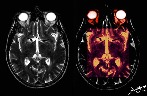 brain-0003-small-sign