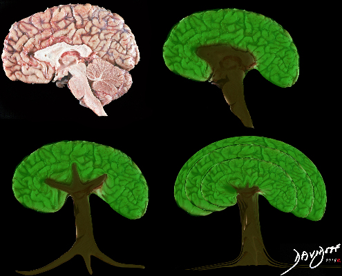 brain, tree, shape, neuroanatomy, derivation, art, the common vein, art in anatomy, Ashley Davidoff MD