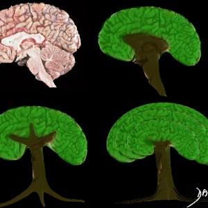brain, tree, shape, neuroanatomy, derivation, art, the common vein, art in anatomy, Ashley Davidoff MD