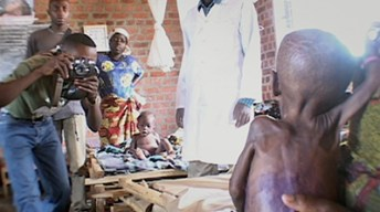 In a still from a documentary, a young man photographs an emaciated hungry child as others look on
