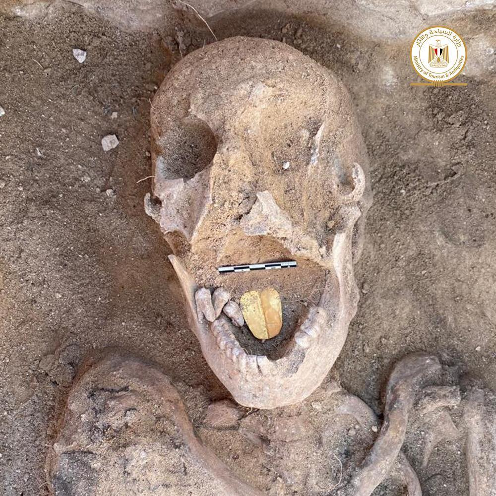 A mummy with a golden tongue