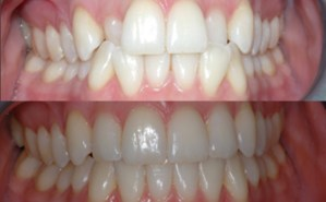 Before and After Invisalign Treatment Photo