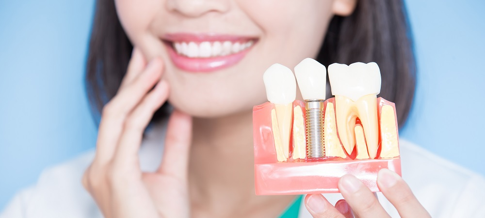 Dental Implants: The Procedure & How They Work