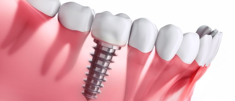 Implant vs. Crown-Supported Bridge: Weighing Options for Missing Teeth
