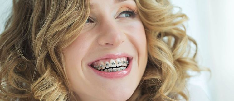 You Have Many Options for Teeth Straightening Treatment