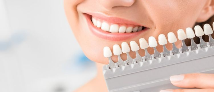 The Benefits of All-porcelain Dental Crowns