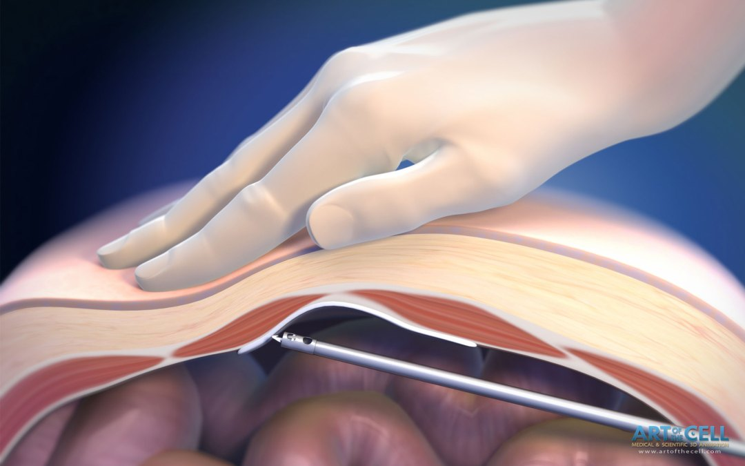 Medical Device Illustrations - Medical & Scientific Video Animation