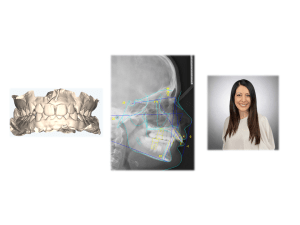 Models, Cephalometric x-ray, and Dr Khatami