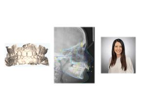 Modelos, radiografía cefalométrica y Dr. Khatami