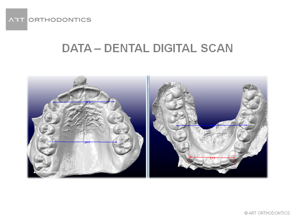 Upper and lower jaw digital models ART Orthodontics