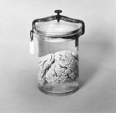 Brains - Arne Svenson