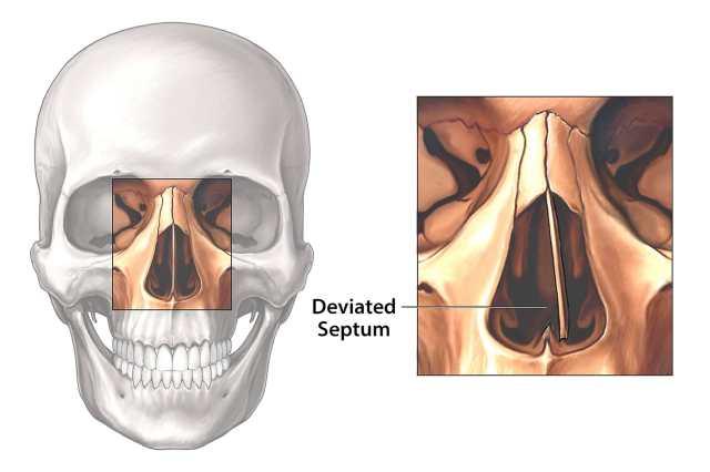 Απόκλιση Septum