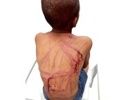 Child Abuse Victim, Chigozie Ogbu