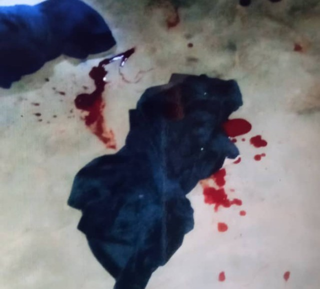 Crime Scene with Rape Blood Stains