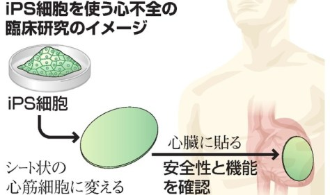 iPS細胞を使う心不全の臨床研究のイメージ