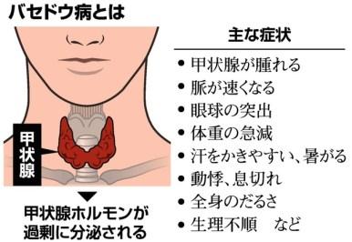 動悸・不整脈・体重の急減…多様な「バセドウ病」の症状:朝日新聞デジタル