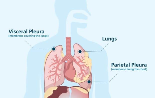 Image result for Diagnostic Surgeries For Mesothelioma