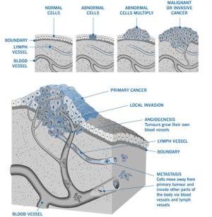 Mesothelioma & Asbestos Images, Diagrams & Graphs