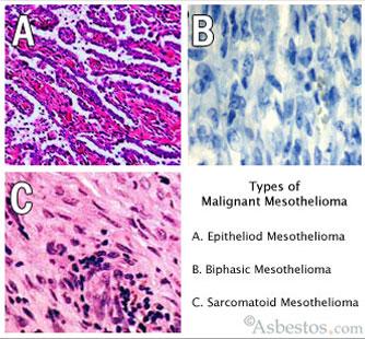 Malignant Mesothelioms Types