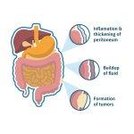 peritoneal mesothelioma causes, treatment u0026 survival ratesdiagram showing the development of peritoneal mesothelioma