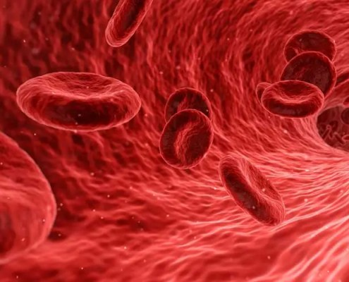 Patologia cardiocircolaoria
