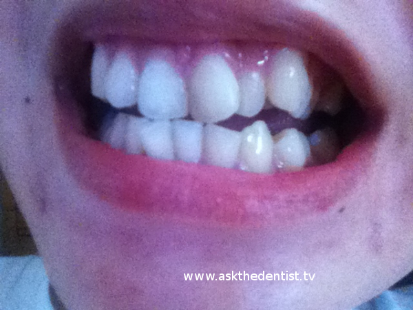 Affordable Braces Price