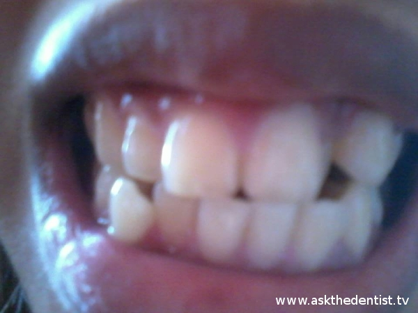 Labial view for braces