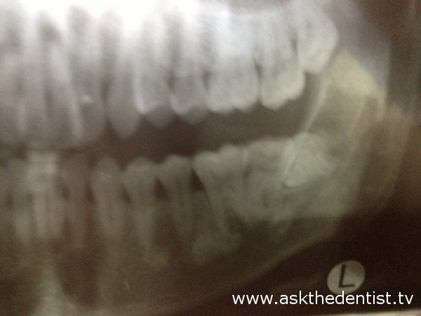 Odontectomy sa Manila - askthedentist.tv