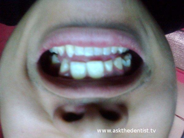 Baliktad na Fang Tooth