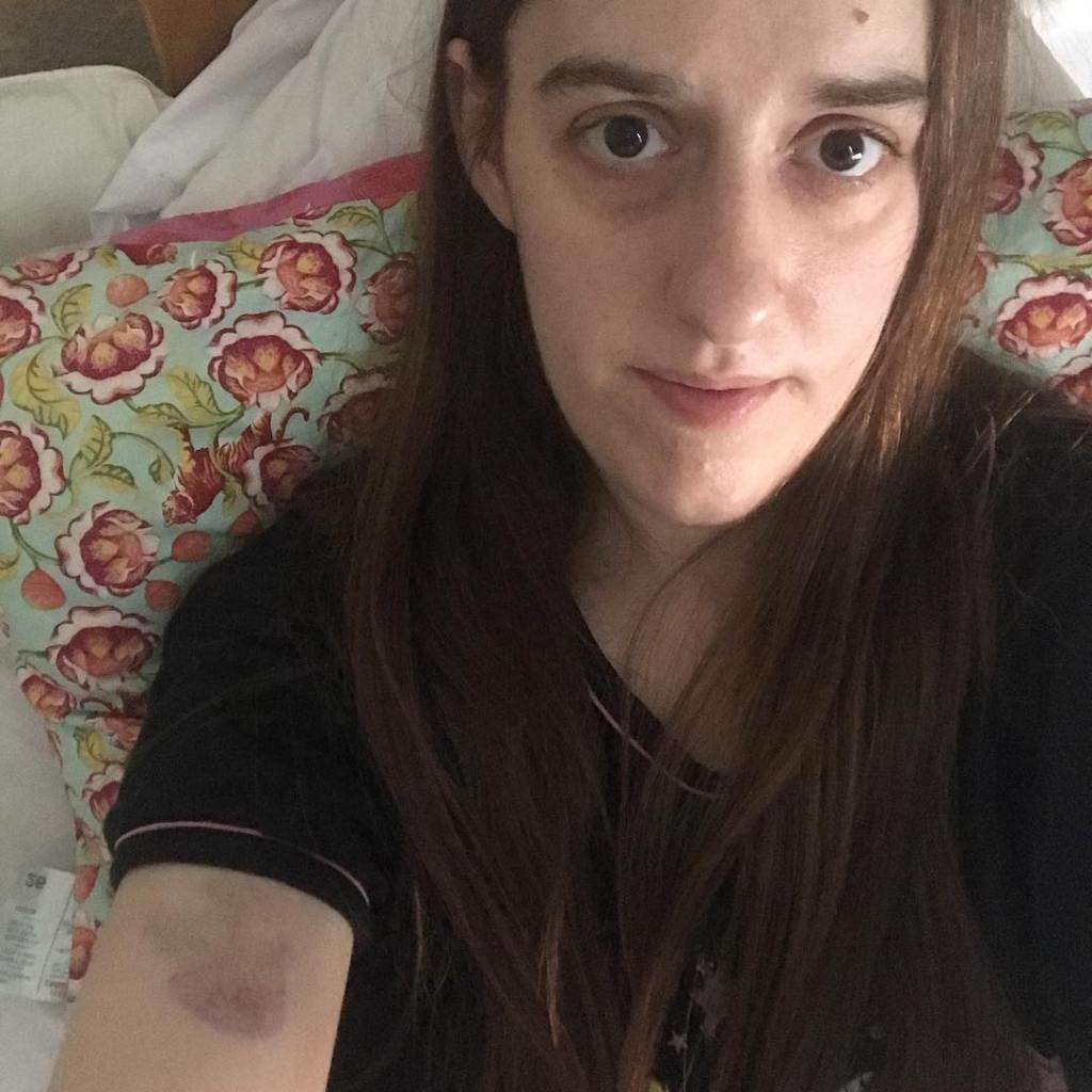 Amanda, a white woman with long, dark hair and dark eyes is sitting propped up in bed by a flowery pillow and wearing a black nightie. She has a large bruise on her upper arm.