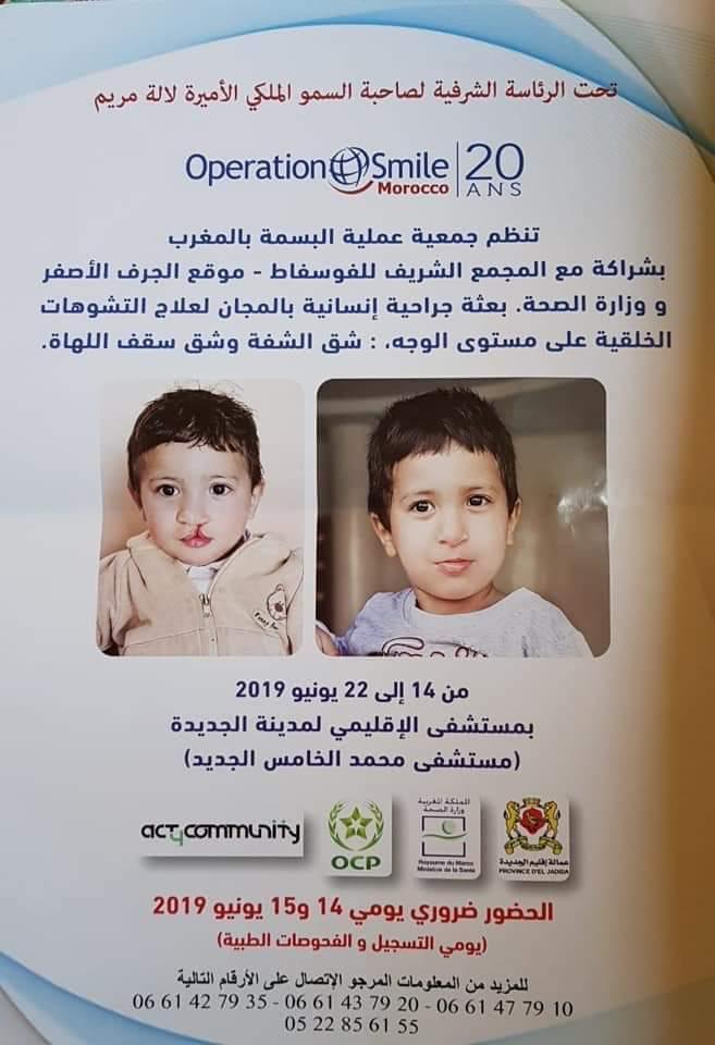 هام: بعثة جراحية ترسم البسمة على شفاه عشرات الأطفال في مدينة الجديدة