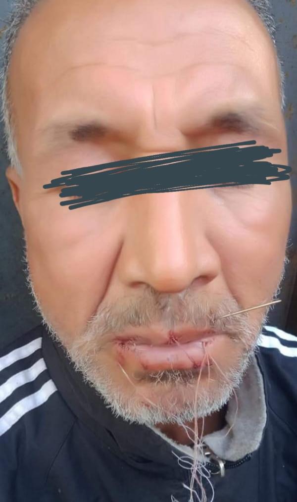 بائع ببني ملال يخيط فمه احتجاجا على منع السلطات له ببناء