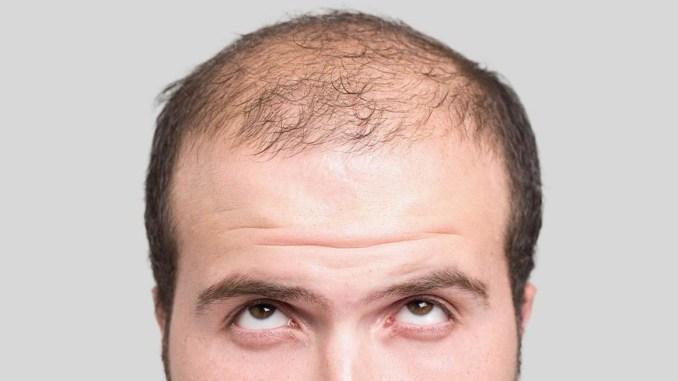 Perdita dei capelli? Percorso prevenzione con Istituto Helvetico Sanders