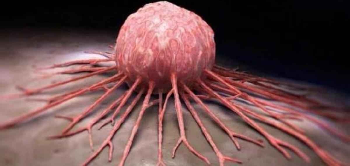 التقدّم في معالجة الأمراض السرطانية