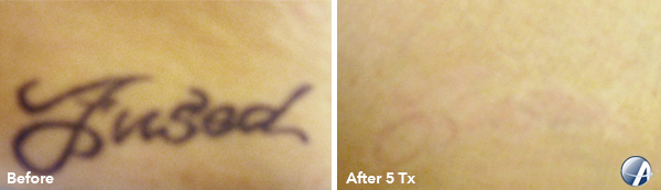 Tattoo Removal Before & After Photos, Tattoo Removal ...