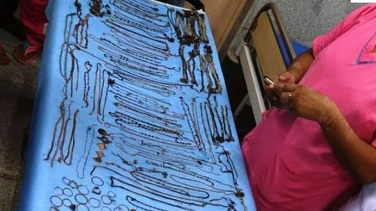 Ινδή είχε καταπιεί κοσμήματα αξίας 60.000 ευρώ