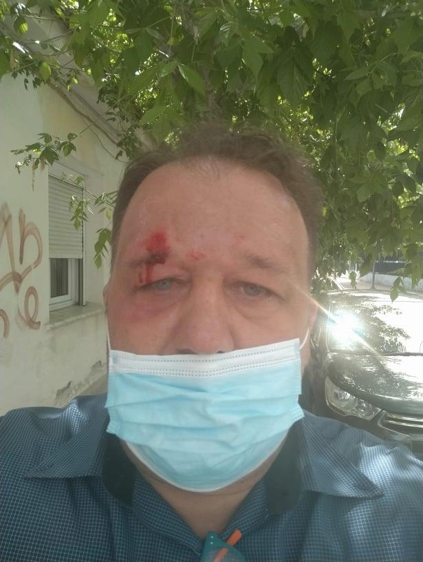Θεσσαλία: Καταγγελία για επίθεση σε δημοσιογράφο στη Νέα Σμύρνη ...