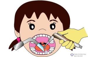 バキューム【大阪市都島区内の歯医者|アスヒカル歯科】