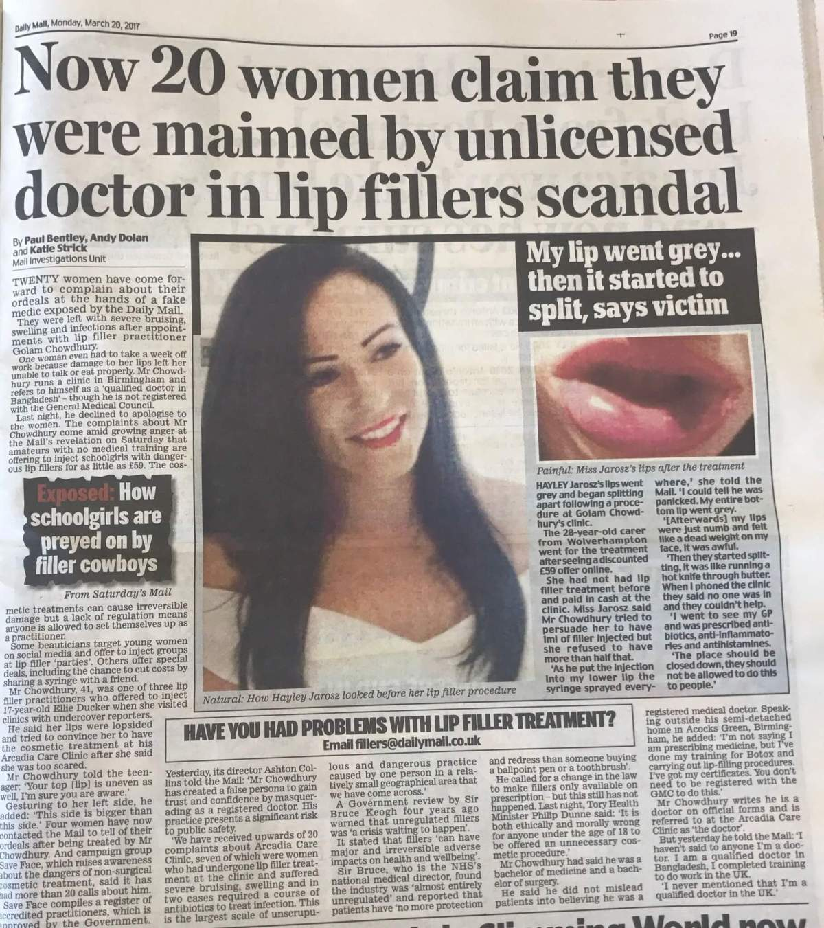 Facial fillers gone wrong