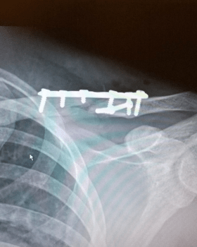 fractured clavicle image 2