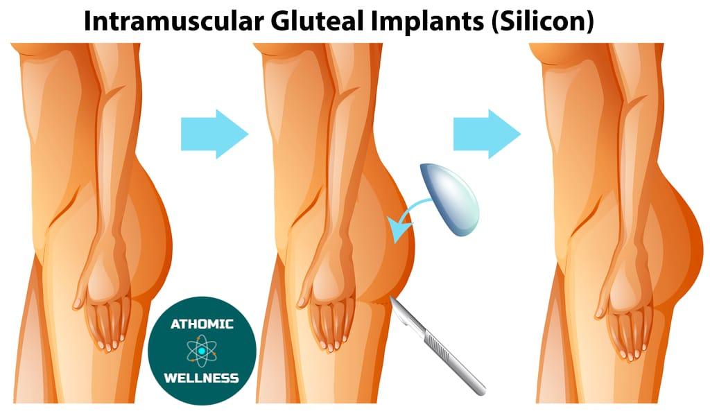 Implant pour fesse